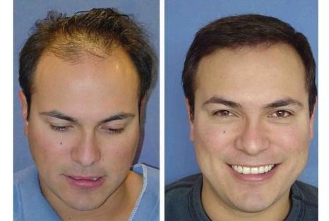 About hair transplants - klaudiascorner.net