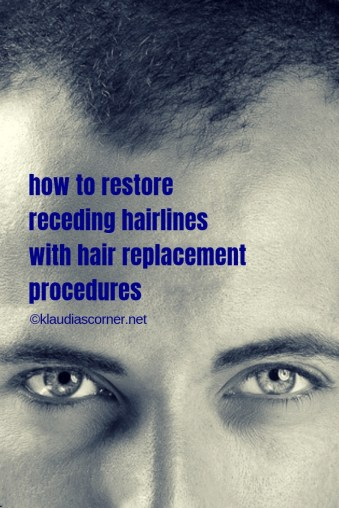 how to restore receding hairlines with hair replacement procedures