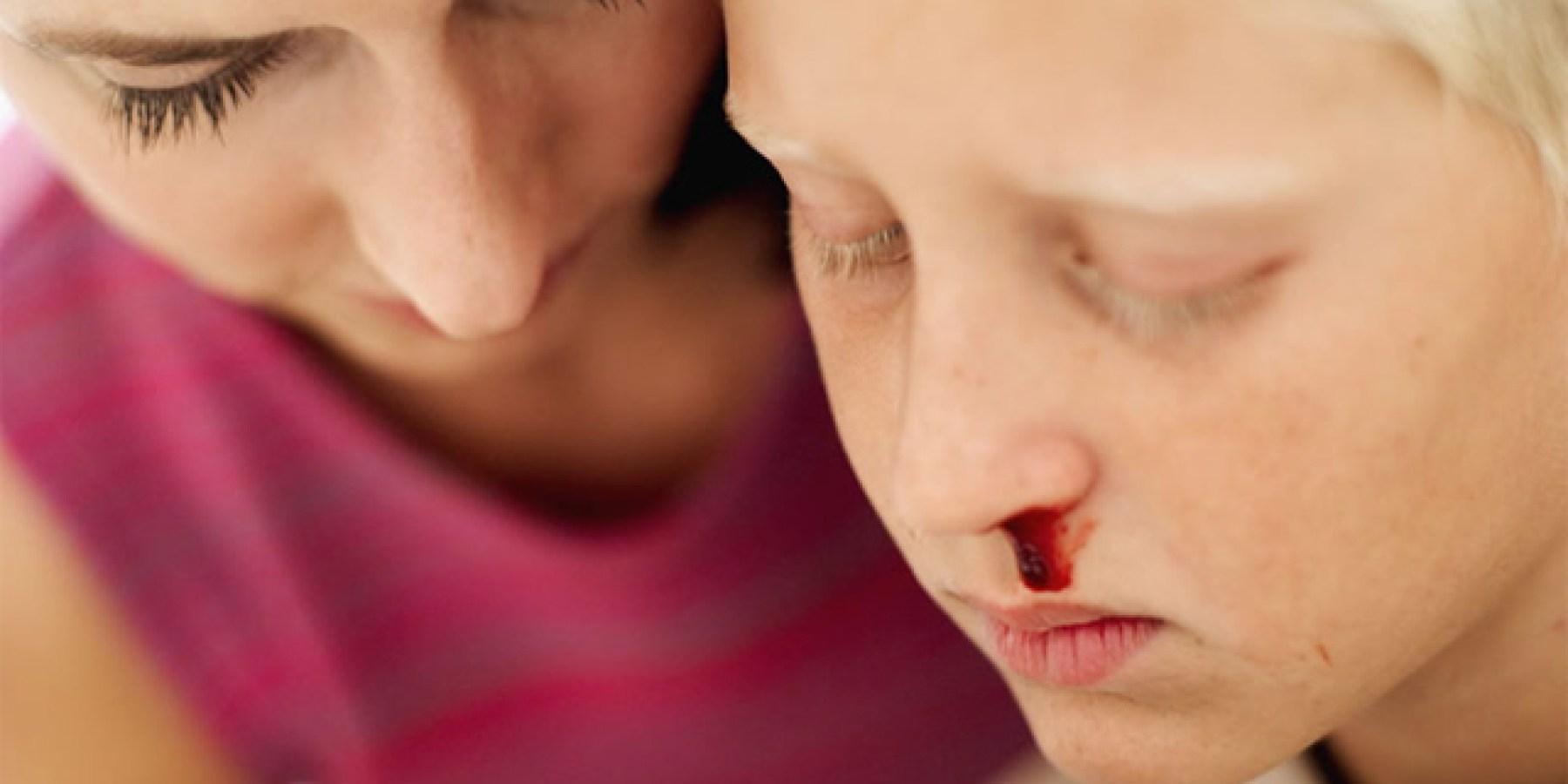 Nasenbluten: Wie Eltern es richtig stoppen