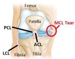 Image result for Medial Knee Ligament Injury