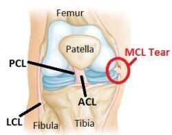 Image result for Medial Knee Ligament Injury