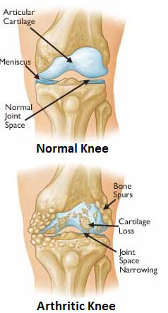 Here you can see the difference between a normal healthy knee and an arthritic knee