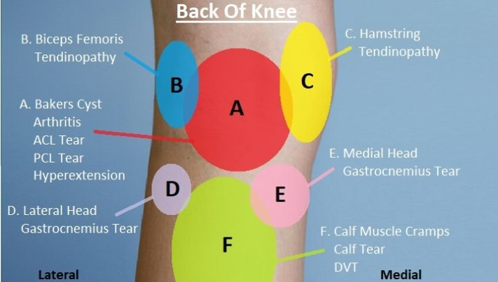 Posterior Knee Pain Diagnosis Chart. This knee pain injury chart helps you to work out what is causing pain behind your knee