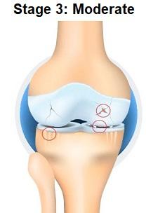 Stage 3 Knee Arthritis