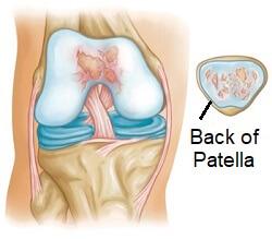 Patellofemoral Knee Arthritis