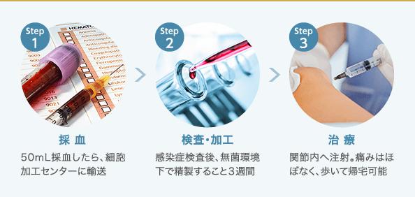 PRP-FD注射の治療効果や費用|橫浜・神奈川の変形性ひざ関節癥 ...