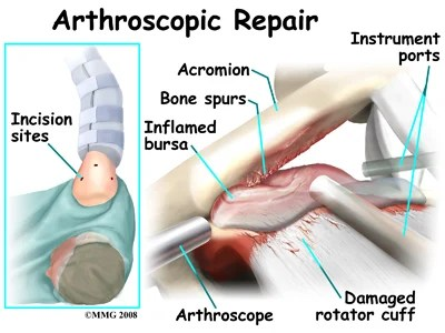 Image result for shoulder arthroscopy procedure