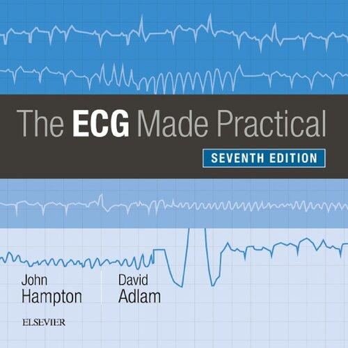 The ECG Made Practical