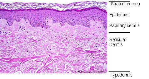 Image of Papillary dermis
