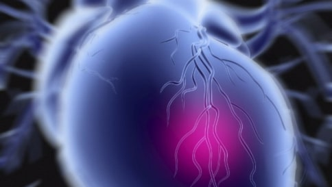 Cerotto per riparare il cuore dopo un infarto