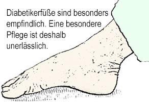 Diabetikerfüsse sind besonders empfindlich. www.kompressionsstruempfe-online.de