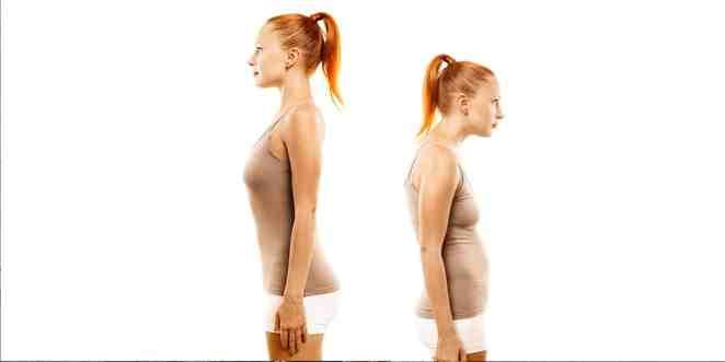 kegel egzersizleri duruş bozukluğu tedavisi