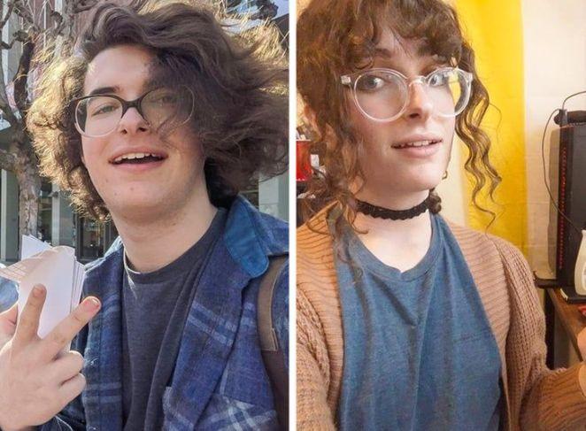 Cinsiyet Değiştirme Ameliyatı Geçirip Mutluluğa Kavuşan 7 İnsan