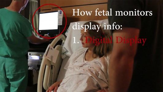 How Fetal Monitors Display Info | Kopa Birth