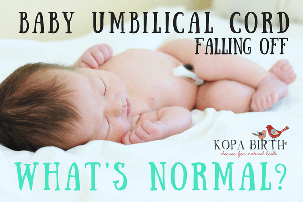 Baby Umbilical Cord Falling Off - What's Normal