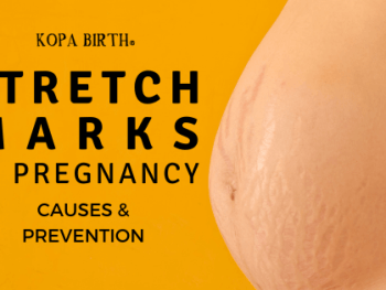 Stretch marks in pregnancy - causes & prevention - image