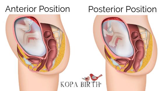 anterior position vs posterior position