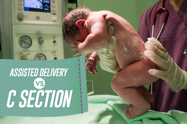 assisted delivery vs c section