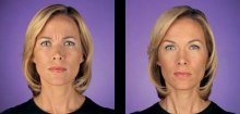 1-botox-before-after-kopelson-clinic-beverly-hills-220x105