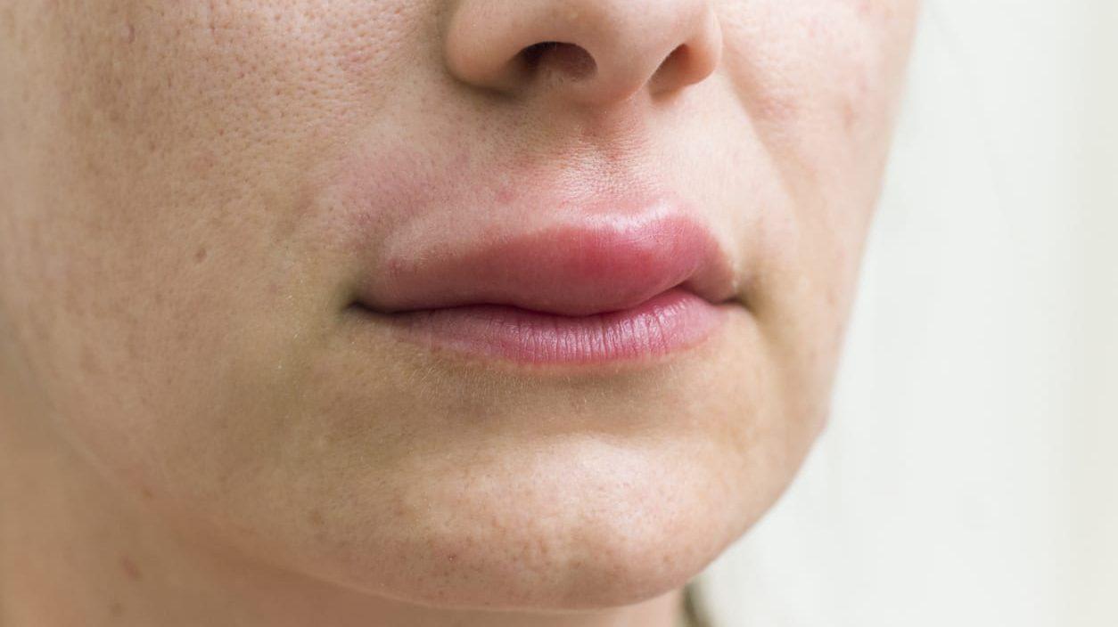 Angioedema adalah bentuk reaksi alergi pada kulit atau membran mukosa. Kondisi ini menyebabkan pembengkakan pada lapisan kulit bagian dalam.