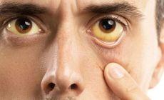 Permalink to Adakah Obat Hepatitis A Khusus? Ini Cara Pengobatan Hepatitis A yang Tepat