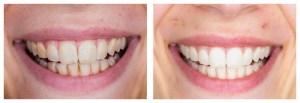 czarna pasta do zębów z węglem aktywnym