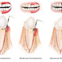 gigi goyang dan gusi berdarah (periodontitis)