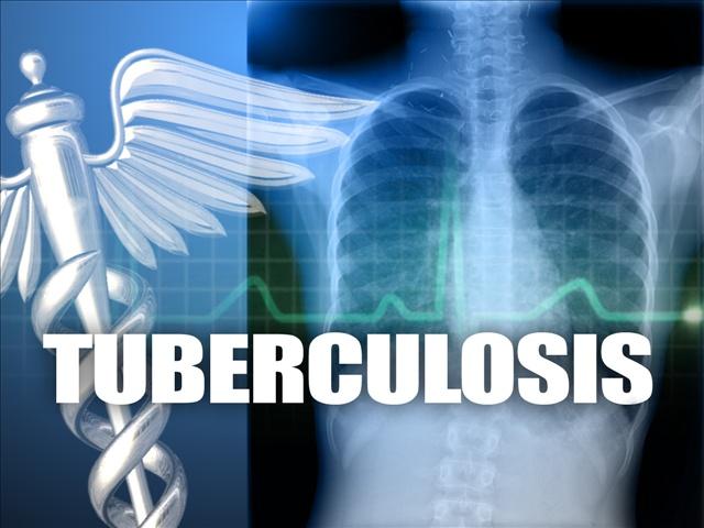 Tuberculosis_1492699414462.jpg