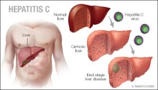 Hepatitis C Graphic