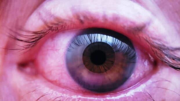 Eye Treatment, Red Eyes