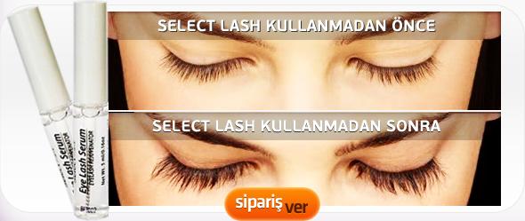 Select Lash şikayet, kullanıcı yorumları