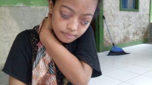 Badriah Ulba (16), gadis yang mengidap penyakit aneh yang menyebabkan dirinya kehilangan penglihatan dan membuat badannya menjadi kurus (dok. Irfan/KM)
