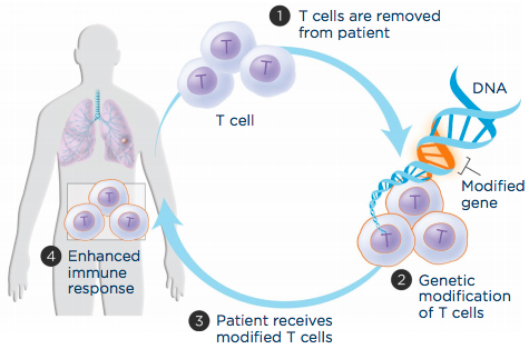 Immunotherapy Colon Cancer