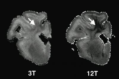 Highfield MRI