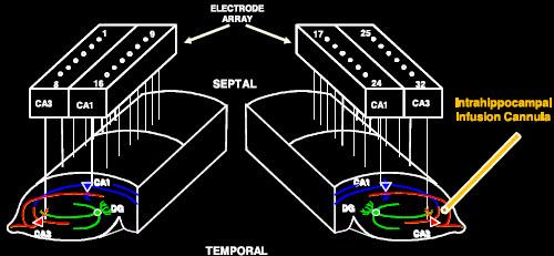 electrode_array