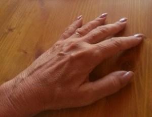 Omlazeni rukou