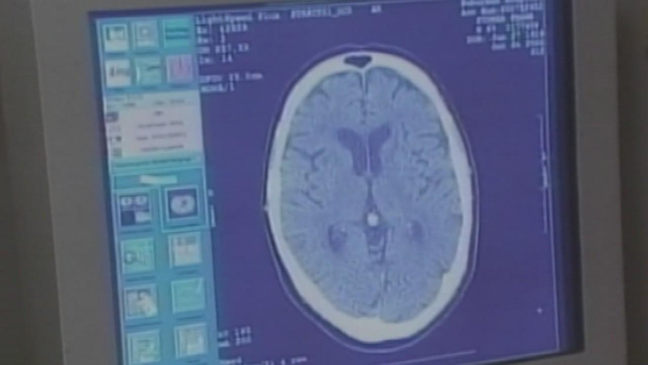 Tackling Alzheimer's disease