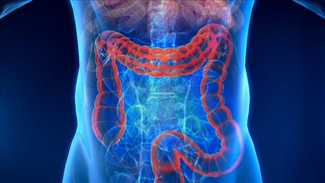 colon_screening_mgn_640x360_80530B00-DANCF_1527709574063.jpg