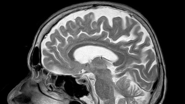 brain_mgn_640x360_80321P00-GBNNR_1537457538658.jpg