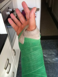 A photo of the author's right hand and wrist in a green cast.