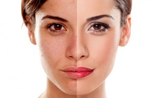 Comparaison retouche beauté, crédit photo La retouche photo, le blog