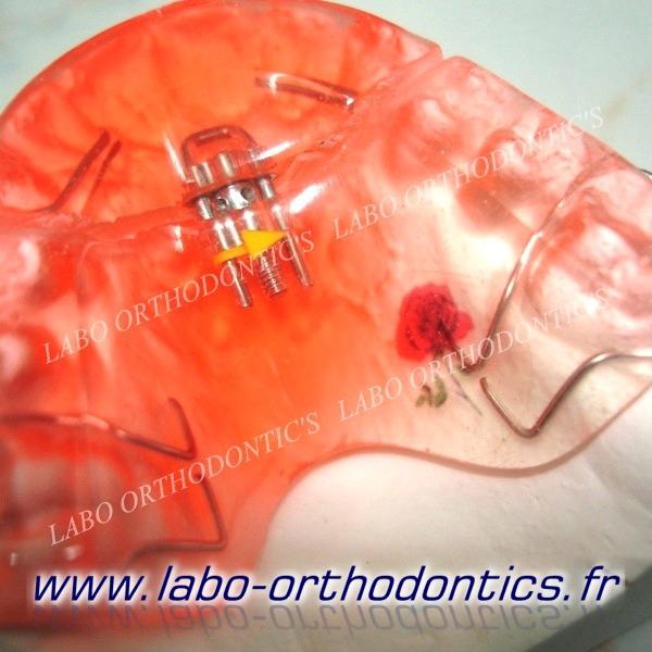plaque à vérin antérieur et piste