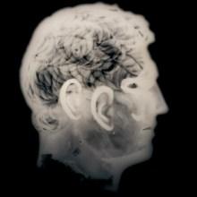 Radiographies de pièces de musées