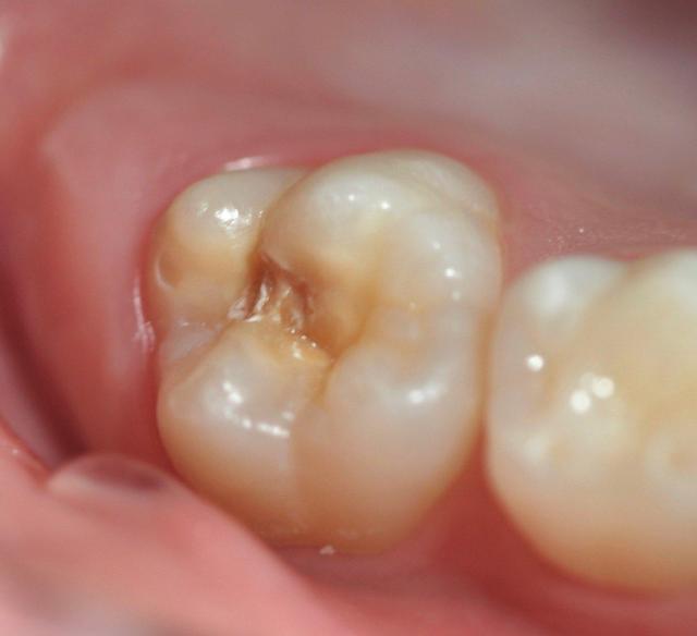 MIH Kreidezähne an Molar