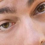 Ciclosporina collirio. Sindrome dell'occhio secco.