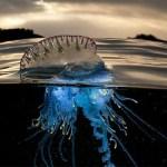 Puntura di medusa che fare