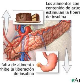 Diabetes Mellitus y el Pancreas