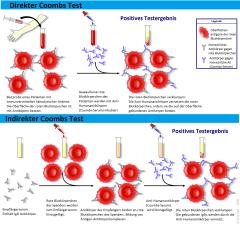 Coombs-test-schema