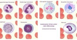 Leukozyten Arten gesamt
