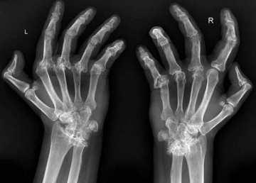¿Realmente nuestros huesos notan que el tiempo va a cambiar?